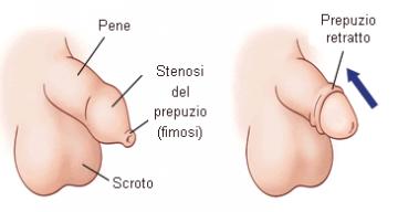 Prevenire l'AIDS con la circoncisione