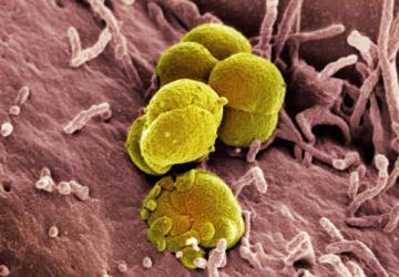 Gonorrea (Scolo), le cure e le terapie