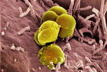 Gonorrea (blenoraggia, scolo)