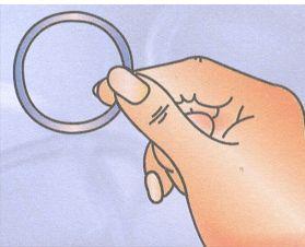 anello contraccettivo